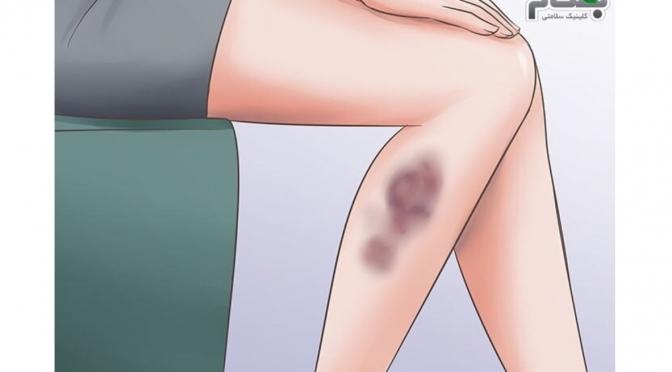 کبودی بدن و علت های آن